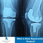 what-is-knee-replacement-surgery