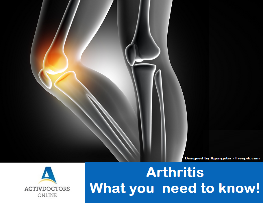 Arthritis - What you need to know!