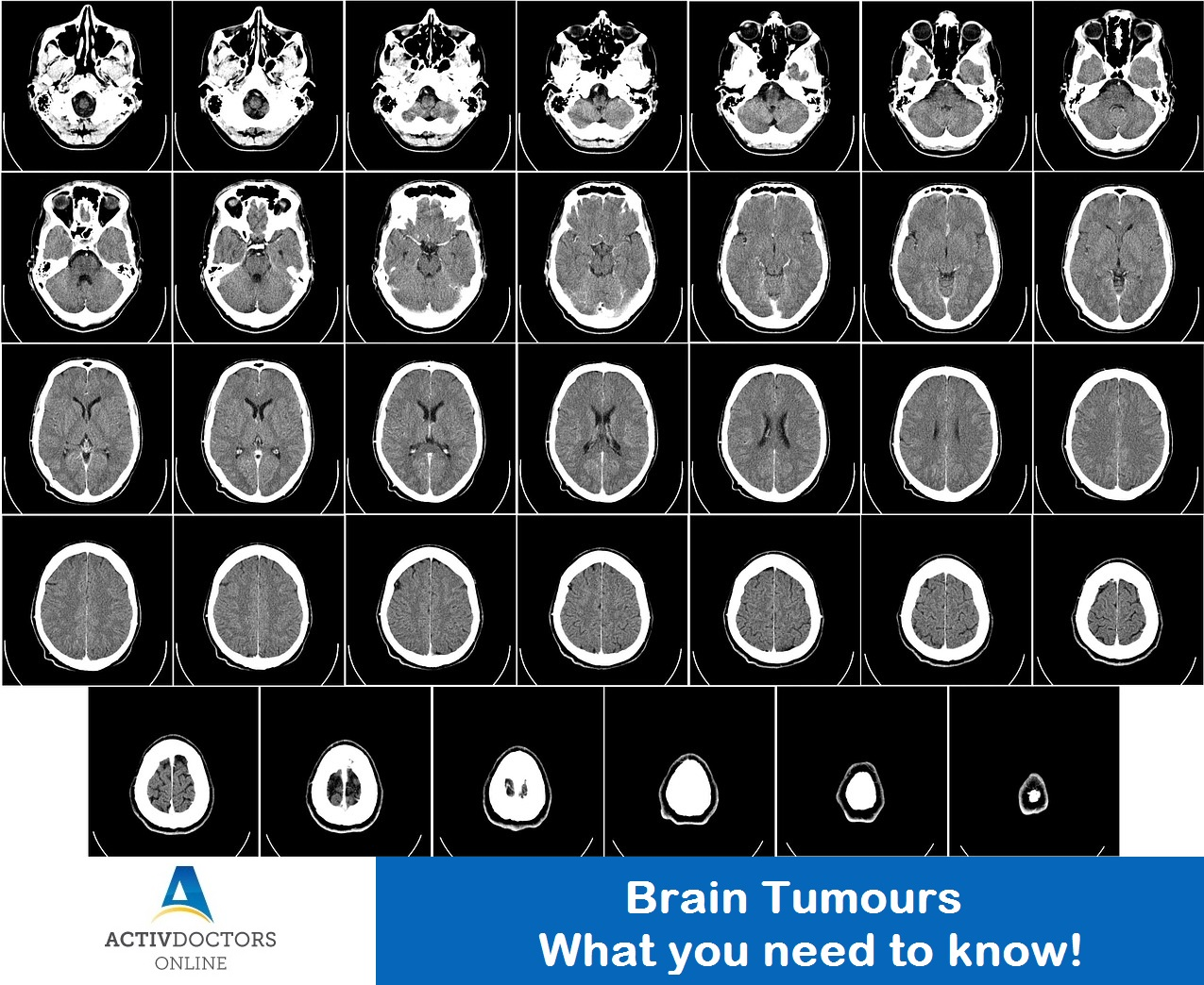 Brain Tumours – What you need to know!