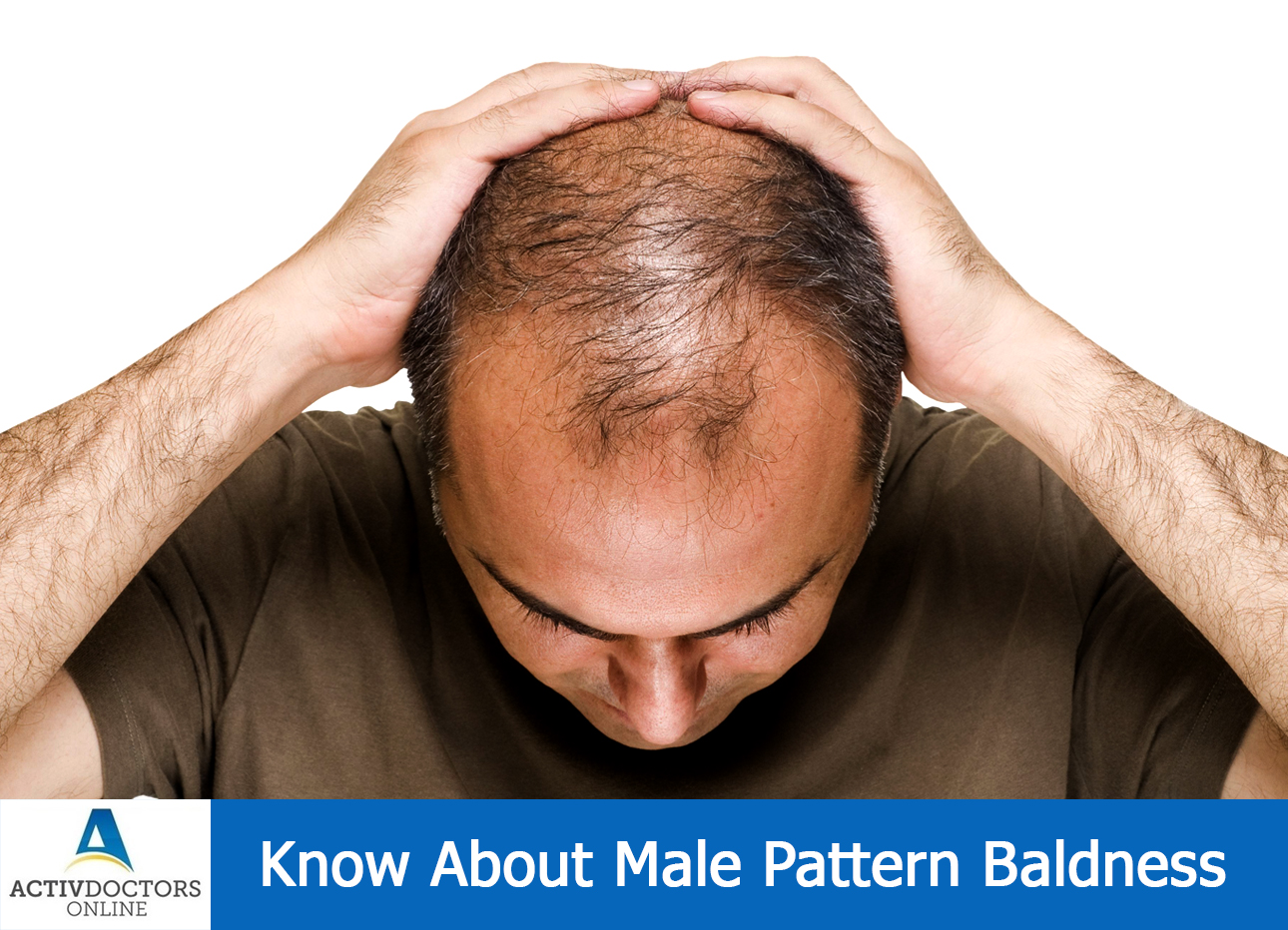 Know About Male Pattern Baldness