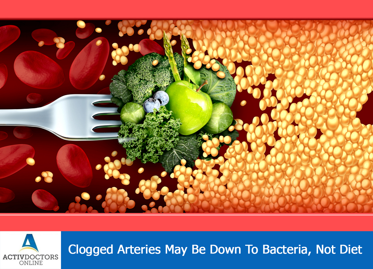 Clogged Arteries May Be Down To Bacteria, Not Diet