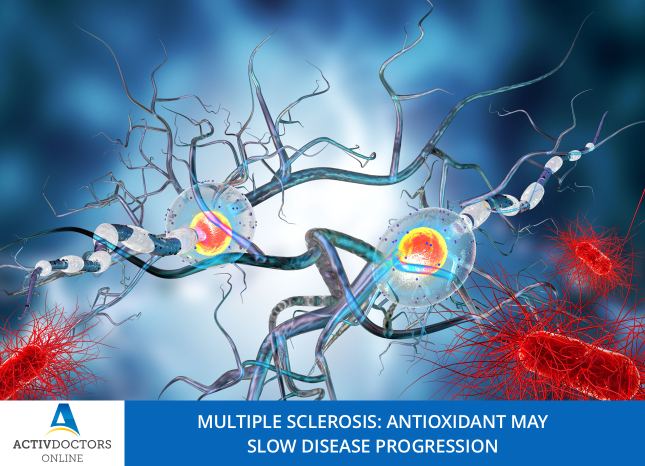 MULTIPLE SCLEROSIS: ANTIOXIDANT MAY SLOW DISEASE PROGRESSION