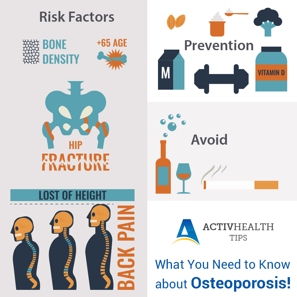What You Need to Know about Osteoporosis?