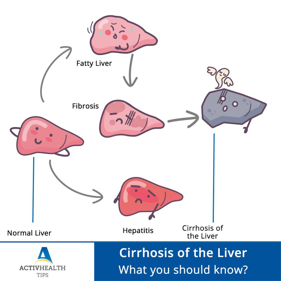 Cirrhosis of the Liver – What you should know?