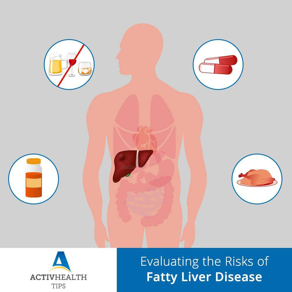 Evaluating the Risks of Fatty Liver Disease
