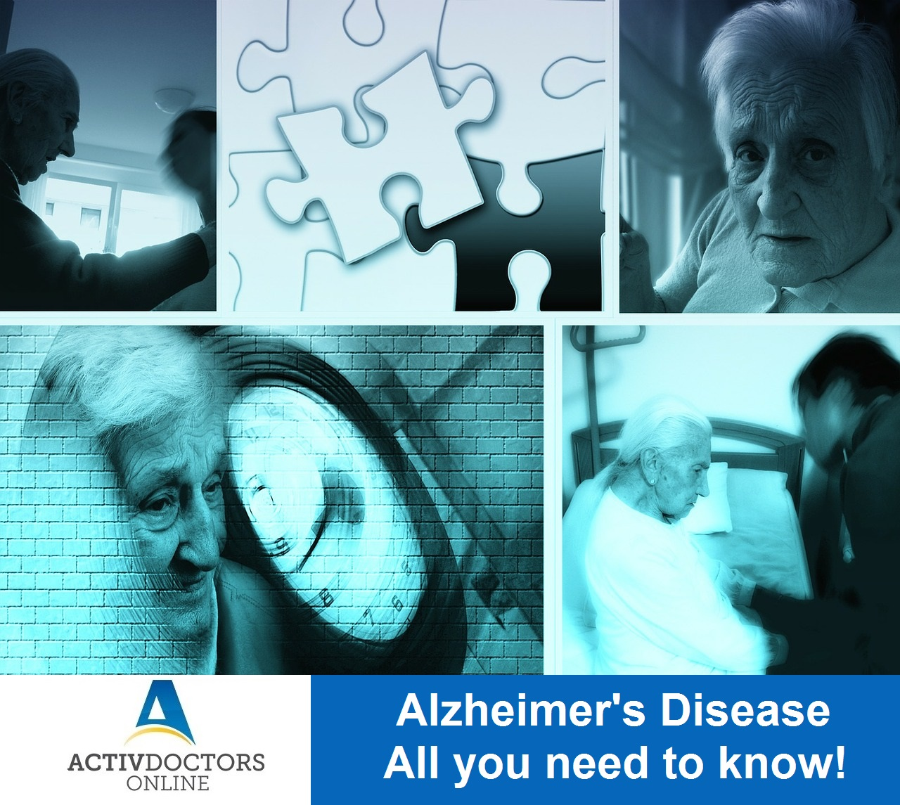Alzheimer's Disease – All you need to know!