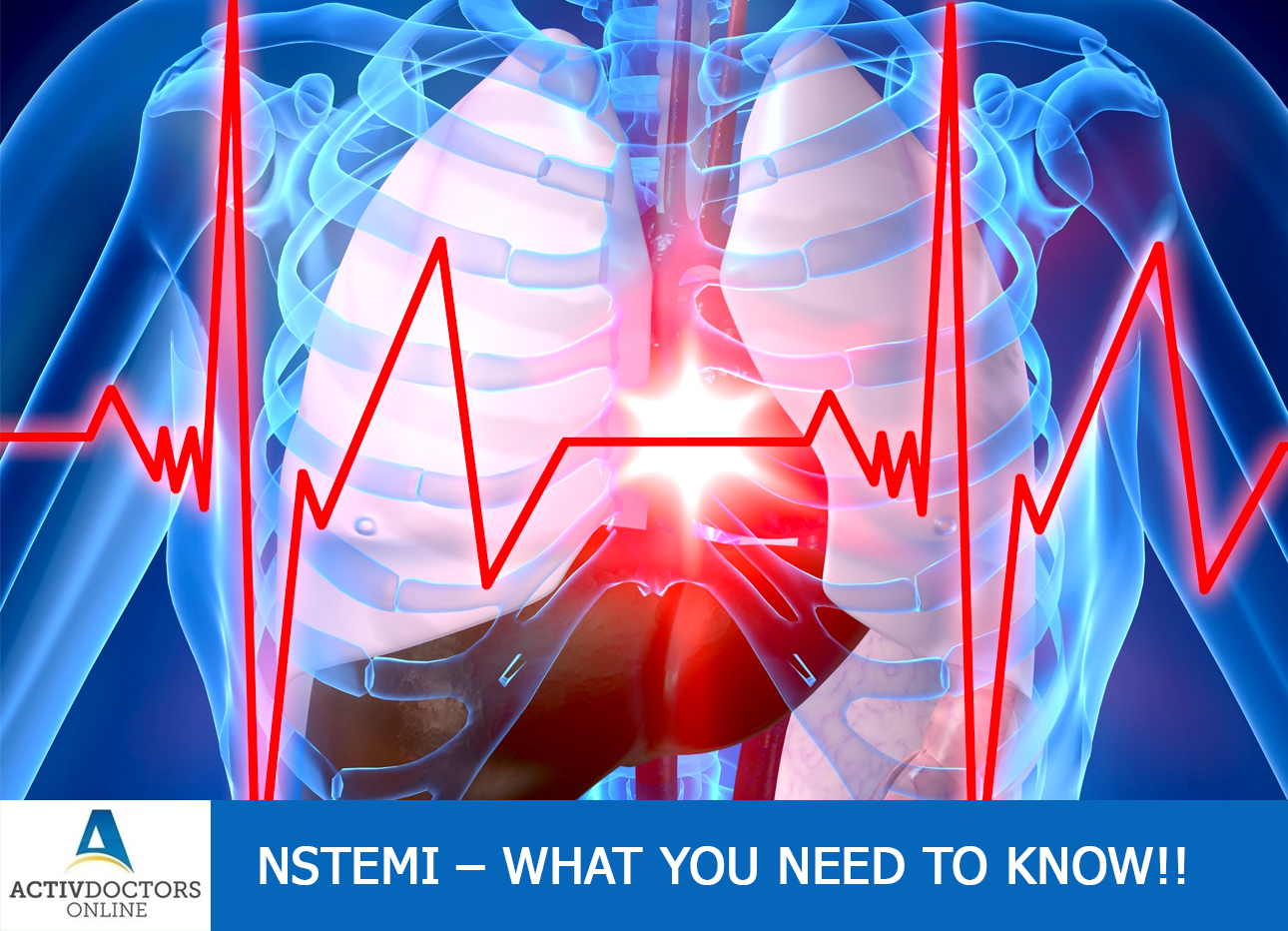 NSTEMI – What You Need To Know!!