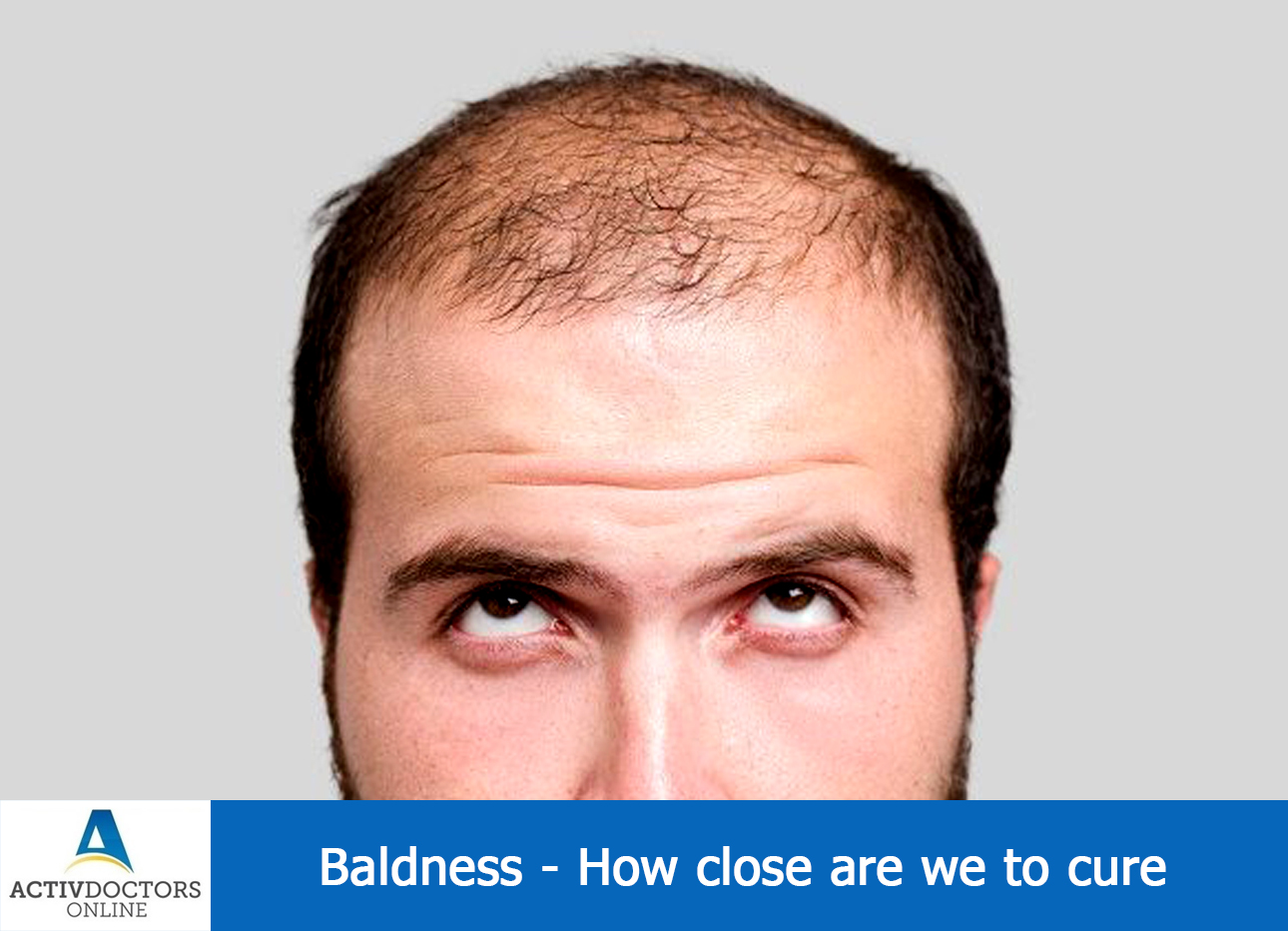 Baldness – How Close Are We To Cure ? ?