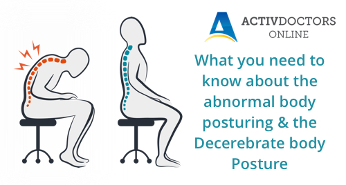 What you need to know about the abnormal body posturing & the Decerebrate body Posture